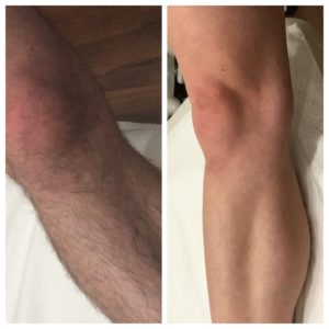 Laser Hair Removal in Leg