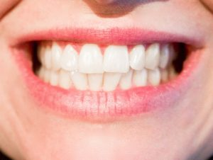Teeth Whitening Doncaster